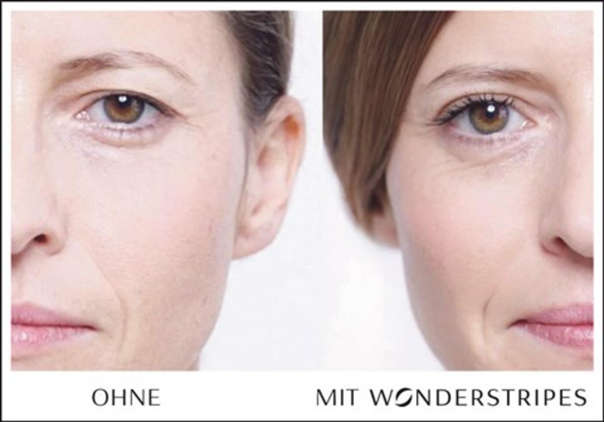 pflaster Zur Optischen In 'augenlid Augenlidkorrektur Wonderstripes Pflaster' Schönheits Transparent korrektur kOPXiuZT