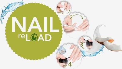alessandro INTERNATIONAL Nagelpflege-Set in transparent, Produktansicht