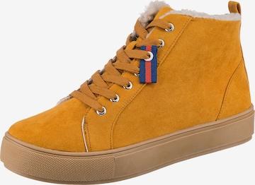 ambellis High-Top Sneakers in Yellow